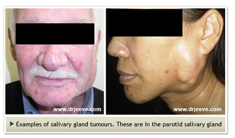Dr Jeeve ENT Specialist in Singapore - Salivary Gland Cancer